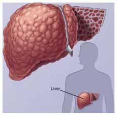 Цирроз печени 2 степени сколько живут