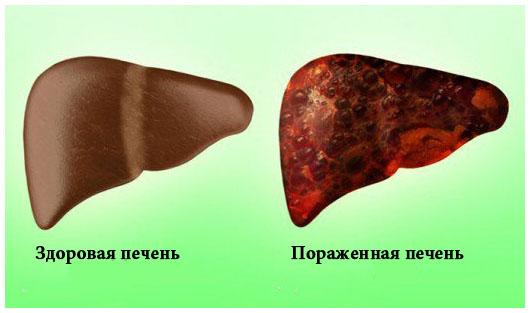 pechen_zdorovay_porazgenay