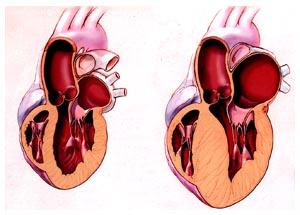 lechenie_kardiomiopatiy